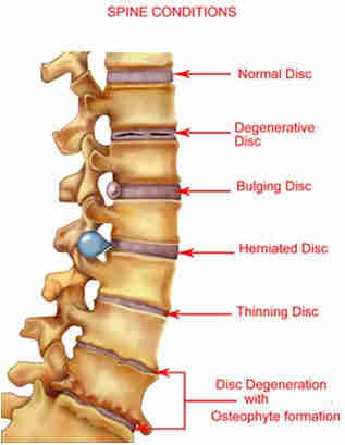My back pain sciatica spine conditions